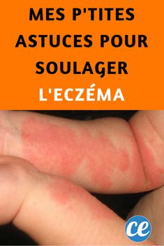 Mes P'tites Astuces Pour Soulager l'Eczéma.