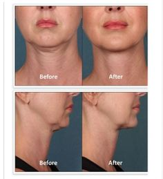 Learn more about Kythera Kybella treatments from experts dermatologists in Washington DC! Eliminate your double skin and rejuvenate your skin today! Botox Cosmetic, Double Chin, Before And After Pictures, Body Contouring, Hair Health, Facial, Lips, Dallas, Fat