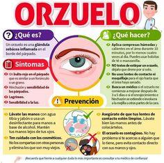 ¿Cómo curar un orzuelo en el ojo? Causas y remedios. #orzuelo #infografía