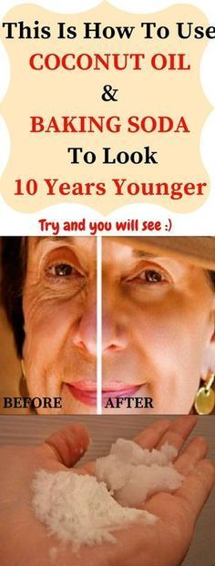This Is How To Use Coconut Oil And Baking Soda To Look 10 Years Younger - Cindi Losurdo - Huidverzorging Natural Face Cleanser, Baking With Coconut Oil, Baking Soda Shampoo, Rides Front, Anti Ride, Anxiety Treatment, Acne Treatment, Skin Tag, Sagging Skin