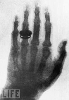 """Röntgen discovered [the] medical use [of x-rays] when he made a picture of his wife's hand on a photographic plate formed due to X-rays. The photograph of his wife's hand was the first ever photograph of a human body part using X-rays. When she saw the picture, she said """"I have seen my death."""""""