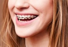 Orthodontics treatment in pembroke pines.Wearing braces can prevent a lot of pain and trouble in the future. make your smile beautiful with us. To read more visit here: http://drdiazsmiles.com/braces-orthodontic-treatments/ #OrthodonticsInPembrokePines