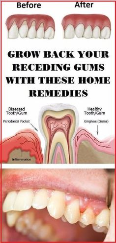 Gingivitis, usually known as gum disease, is a dental issue characterized by symptoms like constant bad breath, red or swollen gums and very sensitive, sore gum