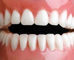 Zbavte sa zubného kameňa doma úplne jednoducho!