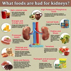 Food For Kidney Health, Healthy Kidney Diet, Healthy Kidneys, Kidney Foods, Renal Diet, Renal Failure Diet, Thyroid Diet, Kidney Failure, Kidney Disease Stages