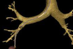 Sistema de Ayuda para Diagnóstico de Cáncer de Pulmón, Broncoscopia Virtual Guiada