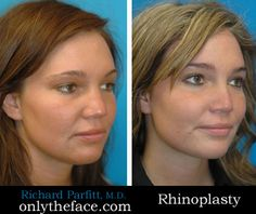 View hundreds of rhinoplasty before and after photos performed by Wisconsin double-board certified facial plastic surgeon Dr. Nose Reshaping, Rhinoplasty Before And After, Nose Surgery, Nose Jobs, Facial, Rhinoplasty, Pictures, Facial Treatment, Facial Care