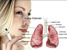 pediatric hospital : Lung cancer is that the leading explanation for ca...