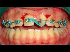 """Corrección de mordida y espacios dentales """"Ortodoncia"""" - YouTube"""