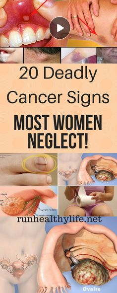 20 Deadly Cancer Signs Most Women Neglect - Daily Health Advisor Lung Cancer Causes, Signs Of Lung Cancer, Cancer Sign, Healthy Women, Healthy Tips, Healthy Food, Digestive Organs, Persistent Cough