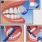 Innovazione nello sbiancamento dentale: usata anche dai migliori dentisti!