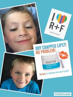 I have another great results story from my adorable, spunky and sweet nephew; he suffers from really bad chapped lips which is even worse in the winter time. A couple of weeks ago I gave him some lip renew serum to try to see if it would help and as you can see it has done a wonderful job!  htttps://kristiekies.myrandf.com