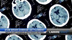 $12M Brain Damage Settlement | Law Wire News | July 2015