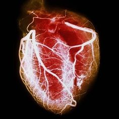 Heart disease prevention includes controlling risk factors like diet, exercise, and stress. Heart disease symptoms in women may differ from men. Use a heart disease risk calculator to determine your heart attack risk. Heart Symptoms, Heart Attack Symptoms, Dubstep, Heart Function, Heart Failure, Anatomical Heart, Human Heart, Heart Health, Human Body