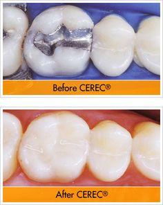 TOUCH this image: Dr. Steven M. London, DDS Dentist Boca Raton by Dr. Steven London