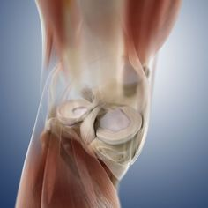 A meniscal cyst is a collection of joint fluid outside of the knee joint. The joint fluid escapes, usually through a meniscus tear, and forms a cyst. Common Knee Injuries, Knee Injury, Meniscus Tear Treatment, Arthroscopic Knee Surgery, Knee Meniscus, Meniscus Surgery, Baker's Cyst, Hip Problems, Knee Pain Relief