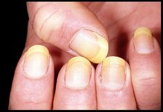 5 Natural Techniques to Prevent Nail Infections...  | See more nail designs at http://www.nailsss.com/nail-styles-2014/
