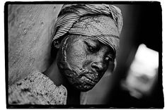 A young woman who was raped and burned by Congolese troops. James Nachtwey