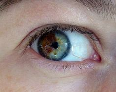 Turn Brown Eyes Blue! This crazy and only takes 20 seconds! But, its $5,000.