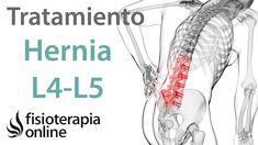 Tratamiento de hernia discal L4 y L5 derecha o cuarta y quinta vértebra...
