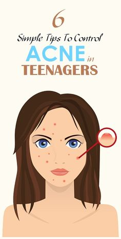 Acne cannot be cured but it can be controlled until hormones regulate to normal levels. Acne is cause by 4 factors:- Inflammation or irritation in the oil glands of the skin Over production of oil Over production of skin cells which causes clogged pores Over production of P.Acnes bacteria Pimples are your body's natural reaction …