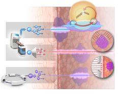 Science & Vie cancer, Rayonthérapie