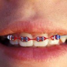 Ortodoncia http://blogsaludbucal.es/ortodoncia/?utm_source=feedly&utm_reader=feedly&utm_medium=rss&utm_campaign=ortodoncia