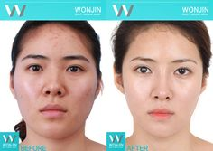 Plastic Surgery in Korea before and after photos #wonjin #beauty #wonjinbeauty #wonjinbeautymedicalgroup #plasticsurgery #twojaw #doublejaw