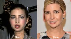 Ivanka Trump plastic surgery rumors is down to speculations about her nose job and boob job. Ivanka is a natural beauty and already looks stunning. Ivanka Trump Outfits, Ivanka Trump Photos, Ivanka Trump Wedding Dress, Photoshop, Chin Implant, Celebs Without Makeup, Ivana Trump, Celebrities Before And After, Celebrity Plastic Surgery