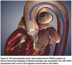 From: Transcatheter Aortic Valve Replacement at the Emory Structural Heart Disease and Valve Center. In: Cath Lab Digest 2012;20(10):1-12.