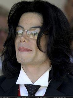 Vitiligo on his forehead.