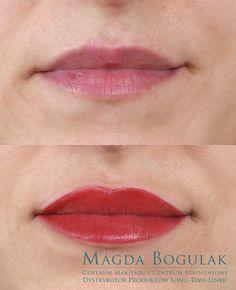 Usta przed i po zabiegu makijażu permanentnego.