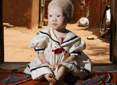 Diego Ravier: Albinos in Africa Show Us Human Dignity. Red Spots On Baby Face Albino African, Melanism, African Babies, Baby Acne, Hippy Chic, Boho Chic, Human Dignity, Living Dolls, Beautiful Children