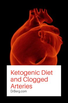 Can the Ketogenic Diet Plan cause clogged arteries?  https://www.drberg.com/blog/body-conditions/high-fat-ketogenic-diet-and-clogged-arteries