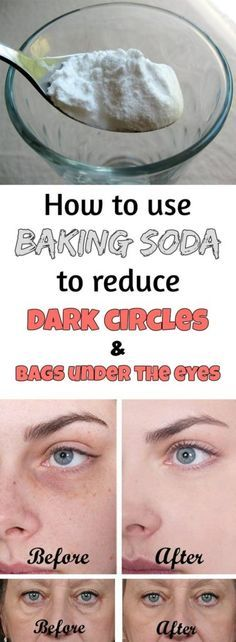 Preparation method  1. Add a teaspoon of baking in a glass of hot water or tea and mix well.  2. Soak two cotton pads in this solution and place them under the eyes. 3. Leave on for 10-15 minutes, then rinse your face and apply a moisturizer.  Do this daily and you'll see amazing results in just 2 weeks!