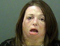 The Shocking Effects of Meth Addiction (45 pics)
