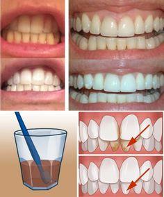 1) Ocet jabłkowy!!!  Moczenie szczoteczki w occie jabłkowym, a następnie standardowe użycie jej podczas mycia zębów, może pomóc Ci w walce z kamieniem nazębnym. To rozwiązanie stosuj 1-2 razy w tygodniu, ponieważ ocet jabłkowy stosowany zbyt długo i zbyt często może uszkodzić zęby. Pamiętaj, aby po każdym takim zabiegu dokładnie przemyć jamę ustną.  2)  Soda oczyszczona!!!  Zamień swoją pastę do zębów na środek, który pomoże Ci pozbyć się kamienia nazębnego. W czym tkwi sekret? Otóż, jak się…