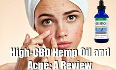 High-CBD Hemp Oil and Acne: A Review