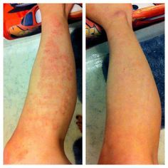 Psoriasis is held at bay with our SEACRET products...why pay for antibiotics that leave you itchy? Try our all natural products....www.seacretdirect.com/tracy