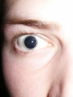 English: Dilated pupils after an optometrist a...