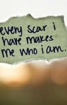every scar I have, makes me who I am(: Surgical, tatts, etc....