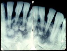 Image result for cementoma Oral Pathology, Dental, Abstract, Artwork, Image, Summary, Work Of Art, Auguste Rodin Artwork, Artworks