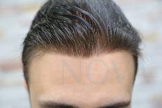 Protez Saç - Protez Saç Çözümleri