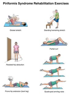 Summit Medical Group Piriformis Syndrome Exercises