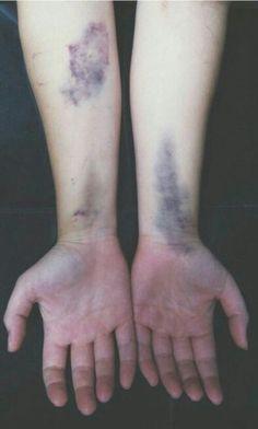 #ból #fizyczny #piękne