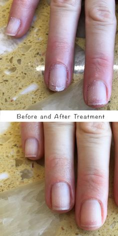 We keep nails stronger by utilizing @famousnamesLLC IBX nail strengthening treatments.  You can wear gel polish and not compromise the nails.