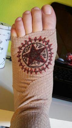 So macht man das Beste aus einer Verletzung // BB *-* // Künstler: meine Wenigkeit // Leinwand: Verband meines Fußes xD
