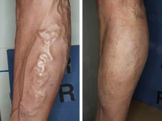 Best #Varicose #Vein Treatment in USA - http://www.usaveinclinics.com/