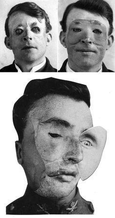 Top, uncredited photographs of WWI veteran with and without his tin mask. Via. Bottom, Ashkan Honarvar, from the series Faces, 2009, collage