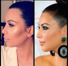 Kim Kardashian nose job plus lip injection & facial contouring with cheek filler Kardashian Plastic Surgery, Plastic Surgery Facts, Kim Kardashian Before, Cheek Fillers, Natural Acne Treatment, Make Up Inspiration, Lip Injections, The Face, Cosmetic Procedures